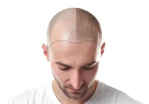 كم تكلفة زراعة الشعر في تركيا