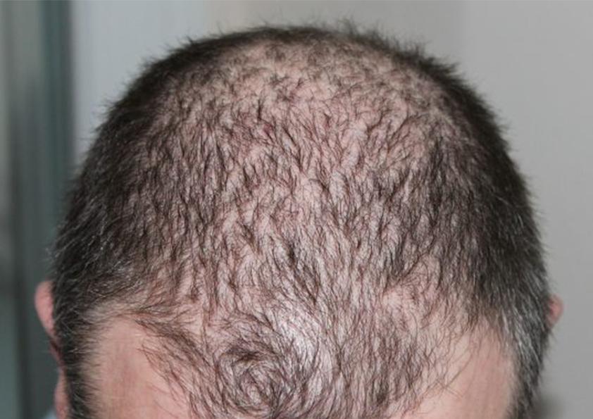 عمليات زراعة الشعر في تركيا بالليزر للرجال