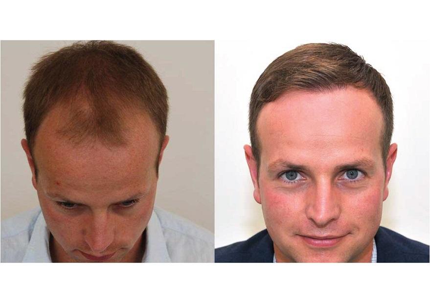 ماهو افضل مركز لزراعة الشعر في تركيا