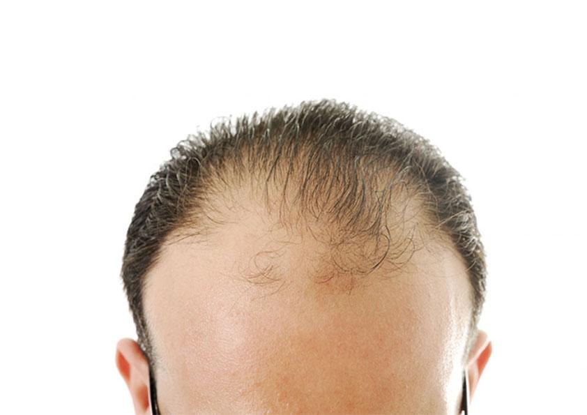 عمليات زراعة الشعر في تركيا بالليزر للنساء