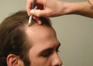 زراعة الشعر في تركيا للنساء