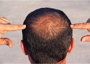 3 أخطاء يجب أن تتجنبهم عند زراعة الشعر في تركيا