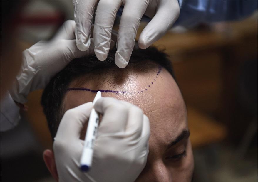 أهم مراكز زراعة الشعر في تركيا؟