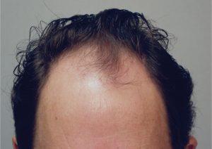 زراعة الشعر في تركيا بالليزر للرجال