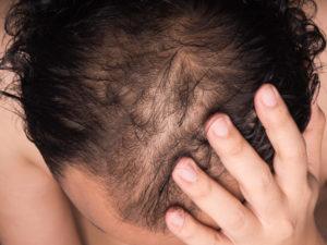 طريقة علاج الشعر الجاف