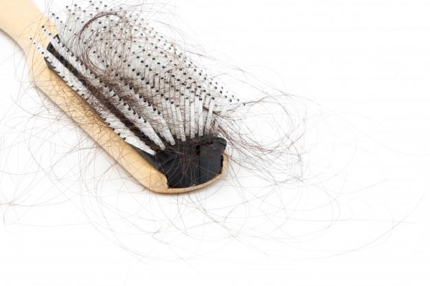علاج الشعر من التساقط الوراثي